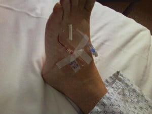 IVs in my feet
